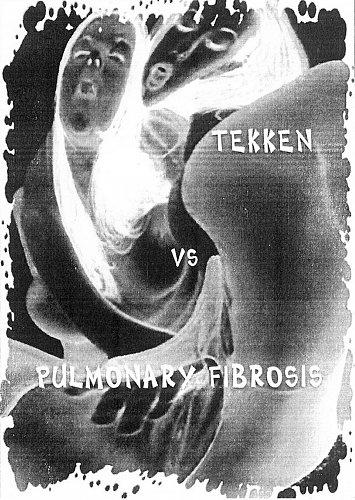 Tekken Vs Pulmonary Fibrosis (2002 Symbolic Productions, France)
